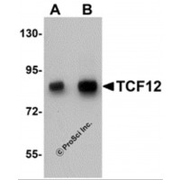 Western blot analysis of TCF12 in HeLa cell lysate with TCF12 antibody at (A) 0.5 and (B) 1 µg/mL.