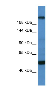 TCF20 antibody LS-C135064 Western blot of OVCAR-3 cell lysate.  This image was taken for the unconjugated form of this product. Other forms have not been tested.