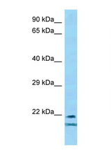 TCF23 antibody Western blot of Mouse Spleen lysate. Antibody concentration 1 ug/ml.  This image was taken for the unconjugated form of this product. Other forms have not been tested.