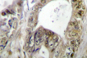 IHC of TCF-1 (F26) pAb in paraffin-embedded human colon carcinoma tissue.