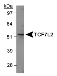 TCF7L2 Antibody - Western Blot on Jurkat cell line.  This image was taken for the unconjugated form of this product. Other forms have not been tested.