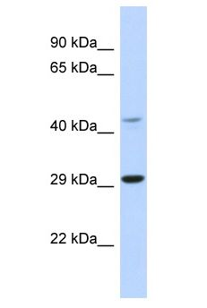 TCFL5 antibody Western Blot of Mouse Spleen. Antibody dilution: 1 ug/ml.  This image was taken for the unconjugated form of this product. Other forms have not been tested.