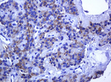 IHC of paraffin-embedded Carcinoma of Human pancreas tissue using anti-RHOJ mouse monoclonal antibody. (Heat-induced epitope retrieval by 10mM citric buffer, pH6.0, 120°C for 3min).