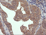 IHC of paraffin-embedded Adenocarcinoma of Human ovary tissue using anti-RHOJ mouse monoclonal antibody.