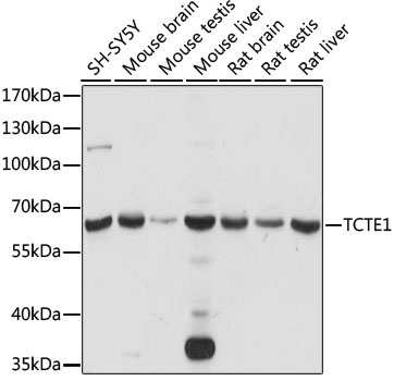 TCTE1 Antibody - Western blot analysis of extracts of various cell lines, using TCTE1 antibody at 1:1000 dilution. The secondary antibody used was an HRP Goat Anti-Rabbit IgG (H+L) at 1:10000 dilution. Lysates were loaded 25ug per lane and 3% nonfat dry milk in TBST was used for blocking. An ECL Kit was used for detection and the exposure time was 15s.