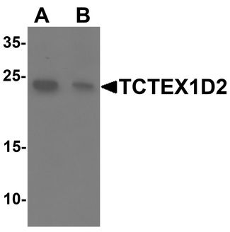 Western blot analysis of TCTEX1D2 in K562 cell lysate with TCTEX1D2 antibody at 1 ug/ml in (A) the absence and (B) the presence of blocking peptide.