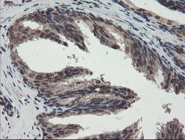 IHC of paraffin-embedded Human prostate tissue using anti-TDO2 mouse monoclonal antibody.