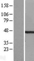 TDP2 / TTRAP Protein - Western validation with an anti-DDK antibody * L: Control HEK293 lysate R: Over-expression lysate