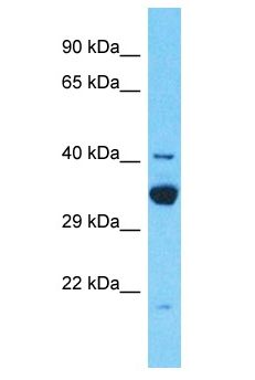 TDRD12 antibody Western Blot of 721_B. Antibody dilution: 1 ug/ml.  This image was taken for the unconjugated form of this product. Other forms have not been tested.