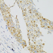 TEK / TIE2 Antibody - Immunohistochemistry of paraffin-embedded human lung cancer using TEK antibody at dilution of 1:100 (40x lens).