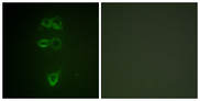 Immunofluorescence analysis of HepG2 cells, using TIE2 (Phospho-Tyr1108) Antibody. The picture on the right is blocked with the phospho peptide.