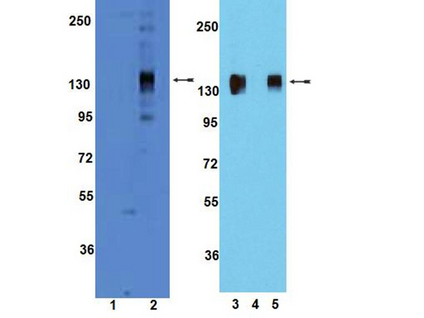 WB: Untreated and pervanadate-treated HUVEC (lanes 1 and 2, respectively) were resolved by SDS-PAGE, transferred to PVDF (Immobilon-P), and probed with anti-phospho-TIE2 (Tyr992) (1:1,000). Blocking Peptide Analysis: Pervanadate-treated HUVEC lysate was either unblocked, TIE2 Tyr992 phosphorylated-peptide blocked, or TIE2 non-phosphorylated peptide blocked (lanes 3, 4, and 5, respectively) that are that were resolved by electrophoresis, transferred to PVDF and probed with anti-phospho-TIE2 (Tyr992) (1:1,000). Proteins were visualized using a goat anti-rabbit secondary antibody conjugated to HRP and a chemiluminescence detection system. Arrow indicates phosphorylated TIE2.
