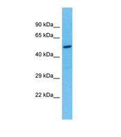 Western blot of Human 721_B. TEKT5 antibody dilution 1.0 ug/ml.  This image was taken for the unconjugated form of this product. Other forms have not been tested.