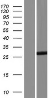 TESC Protein - Western validation with an anti-DDK antibody * L: Control HEK293 lysate R: Over-expression lysate