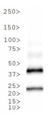 Western Blot: TetR Antibody - Analysis of TetR in 23kDa recombinant protein. Note the presence of a dimer.  This image was taken for the unconjugated form of this product. Other forms have not been tested.