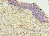 Immunohistochemistry of paraffin-embedded human ovarian cancer using antibody at 1:100 dilution.