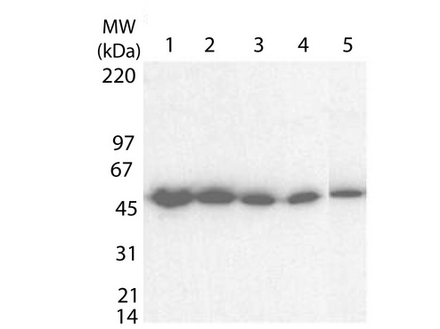 Tetanus Toxin Fragment C Antibody - Western blot using the Anti-tetanus toxin C antibody shows detection of a protein band at ~ 52 kDa corresponding to full length 6XHIS-TTFC fusion protein (arrowhead). Lanes 1-5 contain 10 ng, 5 ng, 2.5ng, 1.25 ng and 0.0625 ng protein respectively. MW markers are shown for size comparison. After blocking, the membrane was probed with the primary antibody diluted to 1:100,000 followed by reaction with a 1:20,000 dilution of HRP conjugated donkey-anti-Rabbit IgG [H&L].