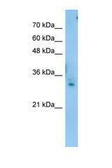 TEX264 Antibody - TEX264 antibody Western blot of Jurkat Cell lysate. Antibody concentration 1 ug/ml. This image was taken for the unconjugated form of this product. Other forms have not been tested.