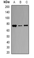TF / Transferrin Antibody - Western blot analysis of Transferrin expression in A549 (A); mouse liver (B); rat liver (C) whole cell lysates.