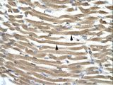 TFAP4 antibody ARP33435_T100-NP_003214-TFAP4 (transcription factor AP-4 (activating enhancer binding protein 4)) Antibody was used in IHC to stain formalin-fixed, paraffin-embedded human muscle.  This image was taken for the unconjugated form of this product. Other forms have not been tested.