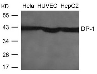 Western blot of extracts from HeLa, HUVEC and HepG2 cells using DP-1 antibody.