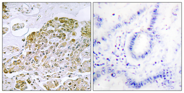 Immunohistochemistry analysis of paraffin-embedded human lung carcinoma tissue, using TFEB Antibody. The picture on the right is blocked with the synthesized peptide.