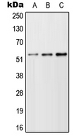 TFEB Antibody - Western blot analysis of TFEB expression in A549 (A); NIH3T3 (B); H9C2 (C) whole cell lysates.