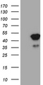 HEK293T cells were transfected with the pCMV6-ENTRY control. (Left lane) or pCMV6-ENTRY TFEC. (Right lane) cDNA for 48 hrs and lysed. Equivalent amounts of cell lysates. (5 ug per lane) were separated by SDS-PAGE and immunoblotted with anti-TFEC. (1:2000)