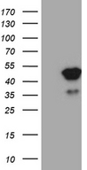 TFEC Antibody - HEK293T cells were transfected with the pCMV6-ENTRY control. (Left lane) or pCMV6-ENTRY TFEC. (Right lane) cDNA for 48 hrs and lysed