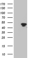 TFEC Antibody - HEK293T cells were transfected with the pCMV6-ENTRY control. (Left lane) or pCMV6-ENTRY TFEC. (Right lane) cDNA for 48 hrs and lysed. Equivalent amounts of cell lysates. (5 ug per lane) were separated by SDS-PAGE and immunoblotted with anti-TFEC. (1:2000)
