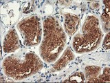 IHC of paraffin-embedded Human Kidney tissue using anti-TFG mouse monoclonal antibody.