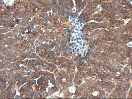 IHC of paraffin-embedded Adenocarcinoma of Human ovary tissue using anti-TFG mouse monoclonal antibody.