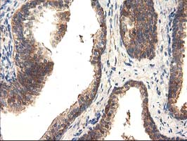IHC of paraffin-embedded Human prostate tissue using anti-TFG mouse monoclonal antibody.