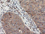 IHC of paraffin-embedded Carcinoma of Human bladder tissue using anti-TFG mouse monoclonal antibody.