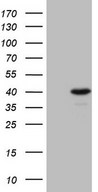 TFIIB Antibody - HEK293T cells were transfected with the pCMV6-ENTRY control. (Left lane) or pCMV6-ENTRY GTF2B. (Right lane) cDNA for 48 hrs and lysed