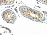 Formalin-fixed, paraffin-embedded human testicular carcinoma stained with TGF-alpha antibody (P/T1).  This image was taken for the unmodified form of this product. Other forms have not been tested.