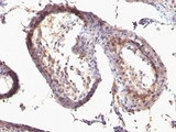 Formalin-fixed, paraffin-embedded human testicular carcinoma stained with anti-TGF alpha antibody (SPM542).  This image was taken for the unmodified form of this product. Other forms have not been tested.