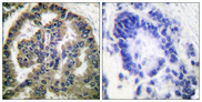 Immunohistochemistry analysis of paraffin-embedded human lung carcinoma tissue, using TGF beta2 Antibody. The picture on the right is blocked with the synthesized peptide.