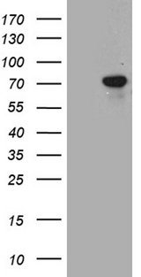 TGFBI Antibody - HEK293T cells were transfected with the pCMV6-ENTRY control. (Left lane) or pCMV6-ENTRY TGFBI. (Right lane) cDNA for 48 hrs and lysed