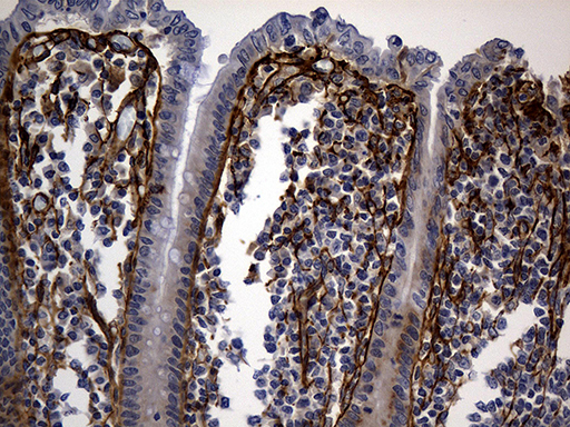 TGFBI Antibody - Immunohistochemical staining of paraffin-embedded Human appendix tissue within the normal limits using anti-TGFBI mouse monoclonal antibody. (Heat-induced epitope retrieval by 1mM EDTA in 10mM Tris buffer. (pH8.5) at 120°C for 3 min. (1:500)