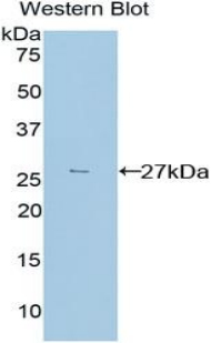 TGFBI Antibody - Western blot of recombinant TGFBI.  This image was taken for the unconjugated form of this product. Other forms have not been tested.