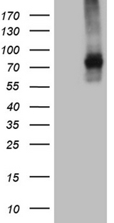TGFBR2 Antibody - HEK293T cells were transfected with the pCMV6-ENTRY control. (Left lane) or pCMV6-ENTRY TGFBR2. (Right lane) cDNA for 48 hrs and lysed