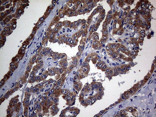 TGFBR2 Antibody - Immunohistochemical staining of paraffin-embedded Carcinoma of Human thyroid tissue using anti-TGFBR2 mouse monoclonal antibody. (Heat-induced epitope retrieval by 1mM EDTA in 10mM Tris buffer. (pH8.5) at 120°C for 3 min. (1:2000)