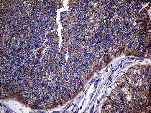 TGFBR2 Antibody - Immunohistochemical staining of paraffin-embedded Adenocarcinoma of Human colon tissue using anti-TGFBR2 mouse monoclonal antibody. (Heat-induced epitope retrieval by 1mM EDTA in 10mM Tris buffer. (pH8.5) at 120°C for 3 min. (1:2000)