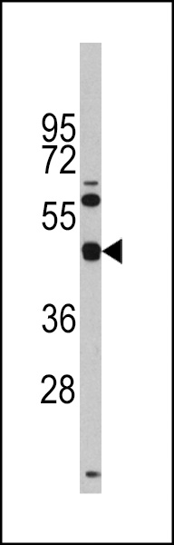 Western blot of anti-TGIF1 Antibody (Center L223) (RB14109) in Y79 cell line lysates (35 ug/lane). TGIF1(arrow) was detected using the purified antibody.