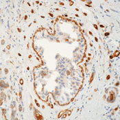 Formalin-fixed, paraffin-embedded human breast carcinoma stained with peroxidase-conjugate and DAB chromogen. Note cell membrane and cytoplasmic staining of tumor and endothelial cells. This image was taken for the unmodified form of this product. Other forms have not been tested.