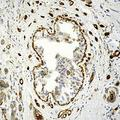 Formalin-fixed, paraffin-embedded human breast carcinoma stained with Transglutaminase II antibody.