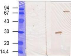 Detection of full-length and proteolysed TG3 in lysate of human epidermal cells with TG3 Monoclonal Antibody.