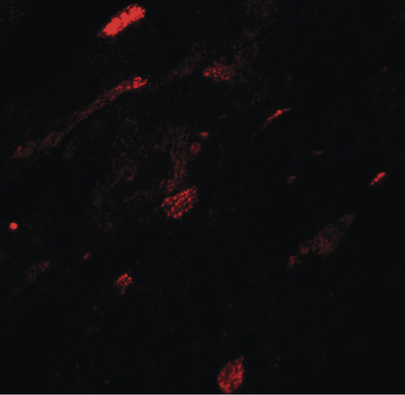 Immunofluorescence of TGM5 in mouse heart tissue with TGM5 antibody at 20 ug/ml.