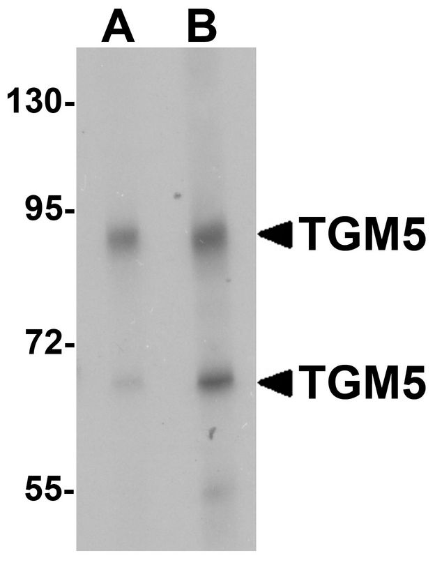 Western blot analysis of TGM5 in rat heart tissue lysate with TGM5 antibody at (A) 1 and (B) 2 ug/ml.